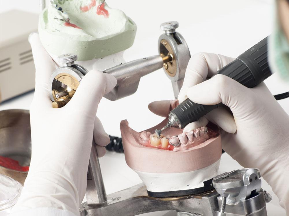 Odontotecnico Bologna riparazioni